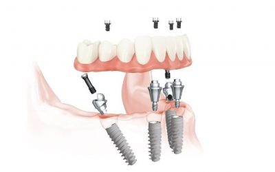Implantálási technikák