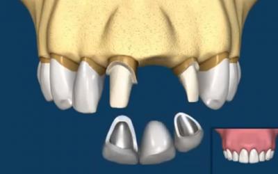 """""""Hagyományos híd"""" vagy fogimplantátum?"""