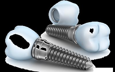 A fog implantátum részei