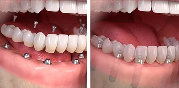 Teljes fogsor implantátum