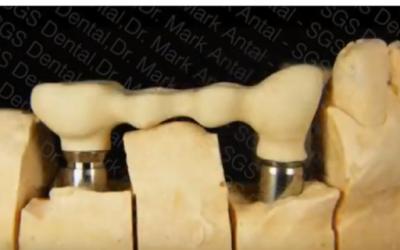 SGS implantátum