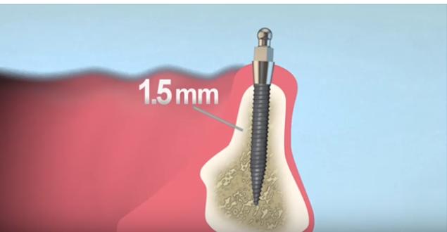 Mini implantátum, fogászati implantátumok méretei