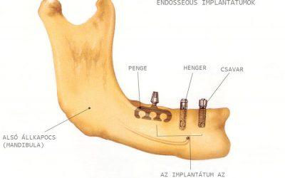 Fog implantátum fajtái formájuk szerint