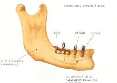 implantátum fajtái