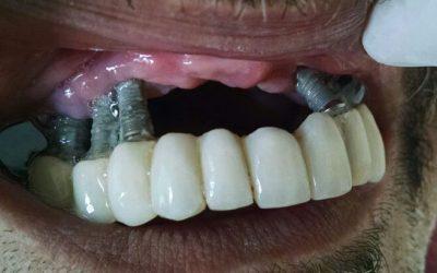 Fog implantátum veszélyei, a hibalehetőségek, implantációs problémák. Fog implantátum hibák megelőzése, ellátása