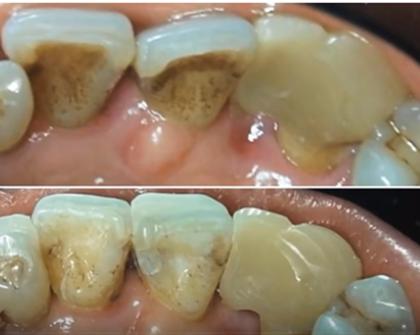 A fogimplantátumhoz vezető leggyorsabb út az elhanyagolt szájápolás
