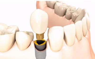 Miért olcsóbb az egyik fogimplantátum és miért drága a másik?