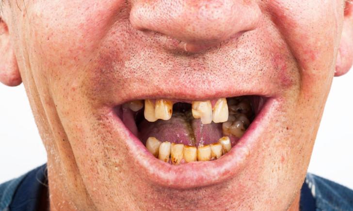 elhanyagolt szájápolás szájhigiénia fogkő