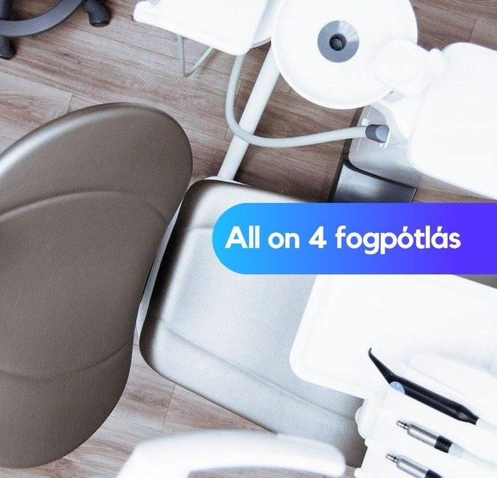 All on 4 fogpótlás – hagyományos fogsor helyett